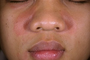Seborrheic dermatitis on face - Causes, Symptoms and Treatment