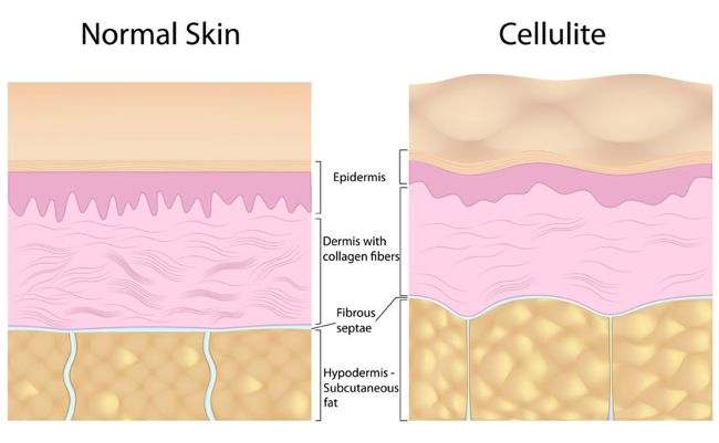 Normal skin vs Cellulite